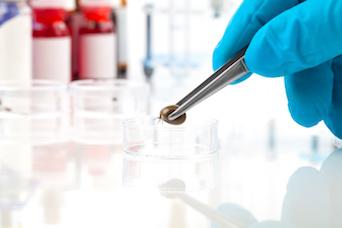 Parasites CDC Report